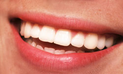 zoom whitening smile